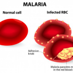Malaria : Not A Piece Of Cake