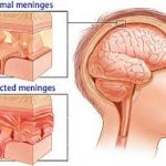 Upaya Pencegahan dan Pengobatan Penyakit Meningitis
