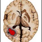 Kenali Penyebab dan Gejala Kanker Otak