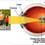 Ketahui Perbedaan Miopi (Mata Minus) dengan Astigmatisma (Silinder)