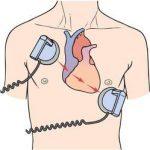 Defibrillator, 'Alat Setrum Jantung' yang Sering Disalahpersepsikan
