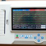 EKG, Mesin Pintar Pendeteksi Aktivitas Jantung