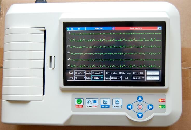 Ekg Mesin Pintar Pendeteksi Aktivitas Jantung Medicalogy