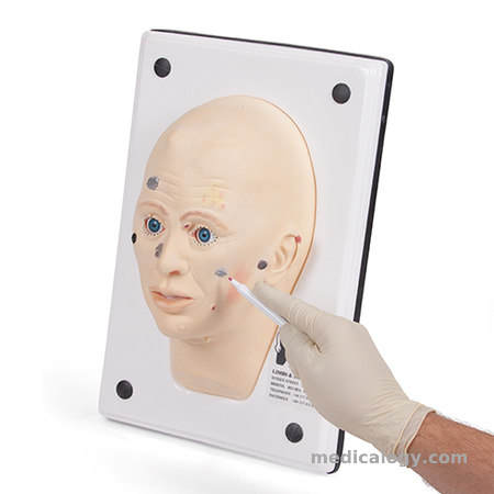 harga Diagnostic Face with Lesions