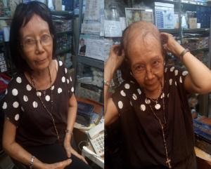 dr-felisia-survivor-kanker-payudara-stadium-4-cara-pengobatan-singapura-cek