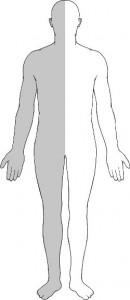 hemiparese