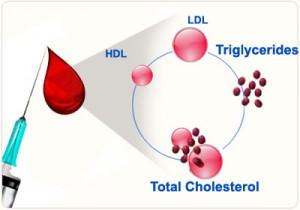 Lipid-Profile-Screening